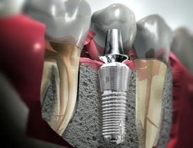 implanteunitario